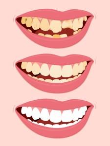 Affordable Cheap Teeth Tooth Bonding Dentist in Box hill south Melbourne mount albert burwood blackburn camberwell doncaster glen waverley mount waverley ashwood deakin University forest hill vermont