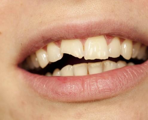 Affordable Cheap Teeth Tooth Bonding cost Dentist in Box hill south Melbourne mount albert burwood blackburn camberwell doncaster glen waverley mount waverley ashwood deakin University forest hill