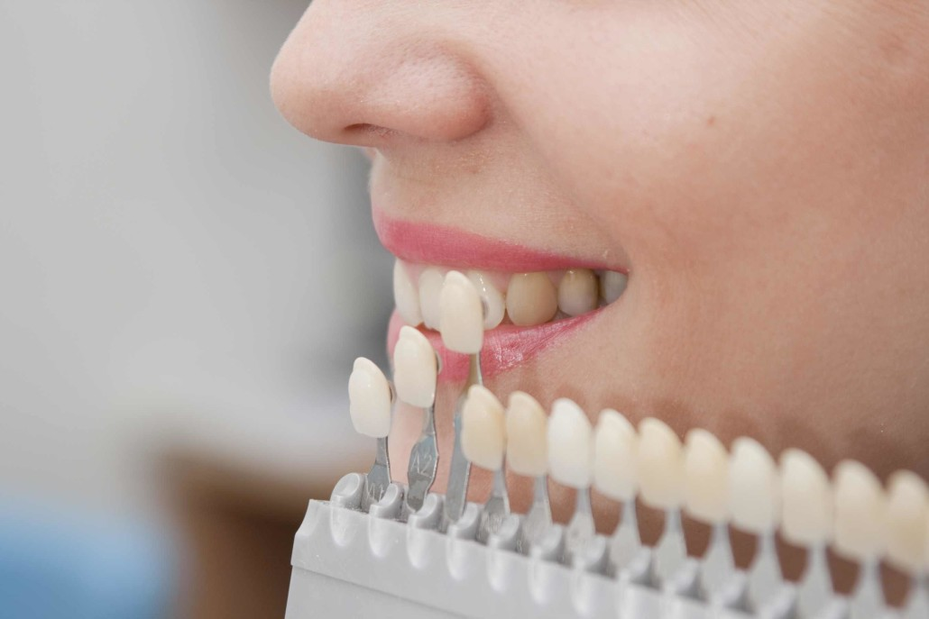 Affordable Cheap Teeth tooth bonding Dentist in Box hill south Melbourne ,blackburn surray hills burwood mount waverley glenwaverley camberwell deakin university forest hill vermont nunawading doncaster mont albert