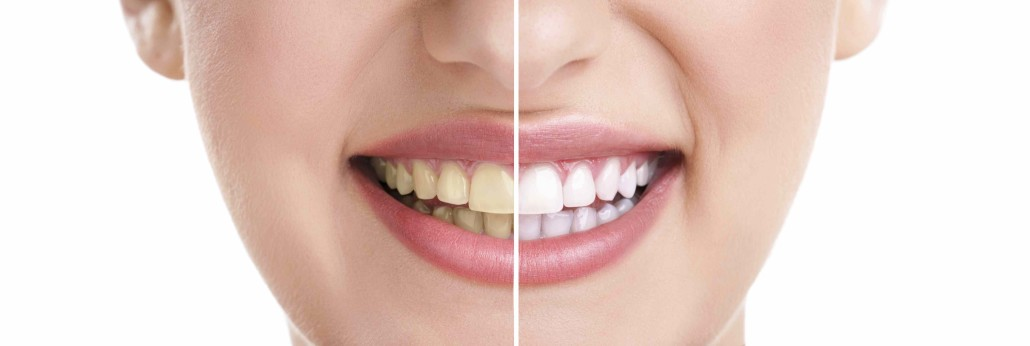 Affordable Teeth Whitening Melbourne Box Hill Free Consultation